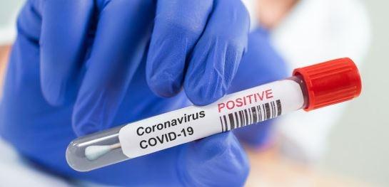 216 са новите случаи на коронавирус у нас. Направените изследвания